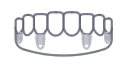 Snap in dentures/implant supported dentures