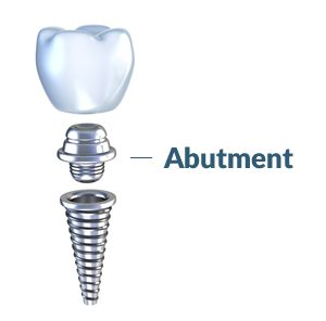 Abutment -element of the dental implant