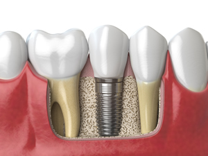 Avoiding Bone Grafting For Dental Implants Elk Grove Ca