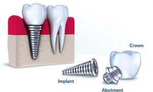 Dental implant shown in parts