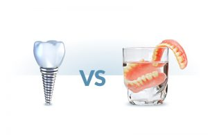 Implant vs Denture