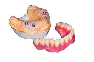 Snap-on dentures